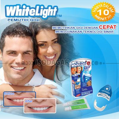 Pemutih Gigi White Light Teeth Whitening Isodagar Com